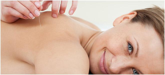 ims og dry needling på ryggen til en ung kvinne