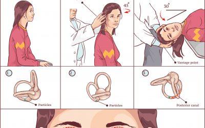Krystallsyke symptomer, diagnose og behandling