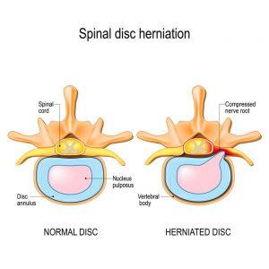 Prolaps i ryggen sammenlignet med ryggsegment der det ikke er et prolaps