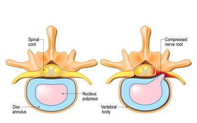 Prolaps i nakken
