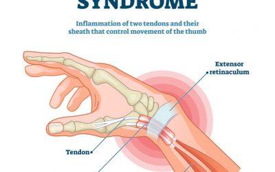 De Quervain syndrom = tommelfinger smerter