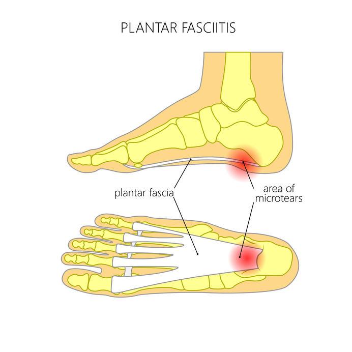 Plantar fascitt sko