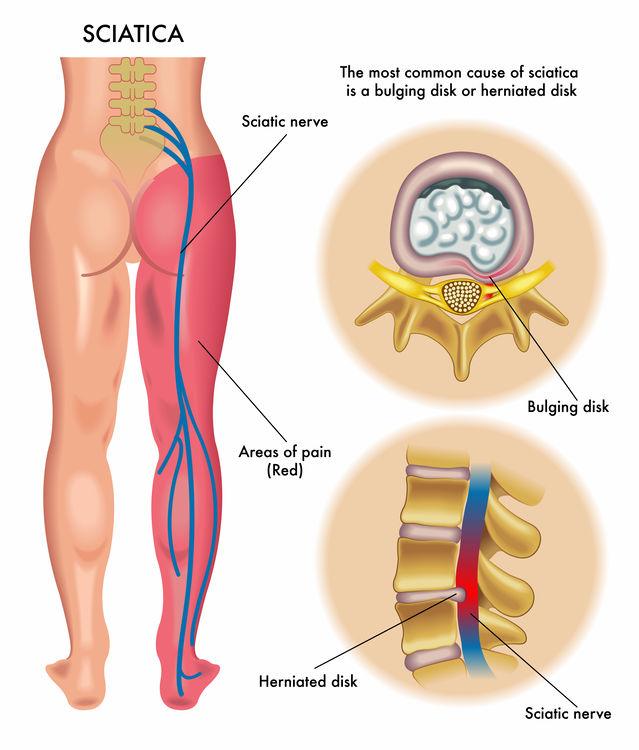 Isjias og isjas illustrert med radierende smerter. Radierende smerter kalles også strålesmerter og nerverotsmerter